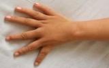 Bé gái có bàn tay 6 ngón giống hệt nhau