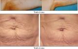 Săn chắc vùng da chảy xệ không cần phẫu thuật