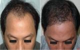 Phục hồi tóc cho người bị hói