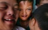 Hạ viện Mỹ điều trần về chất độc da cam Việt Nam