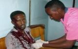 Phiến quân Somalia tấn công khách sạn, giết chết 6 nghị sĩ