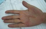 Hải Phòng: Hoang mang bệnh giun bò dưới da