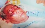 Cụ ông 71 tuổi bị vợ bạo hành