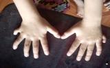 Bé gái có 24 ngón tay, chân