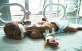 Cứu sống thai nhi trong cơ thể người mẹ đã chết