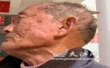 80 tuổi mọc sừng trên đầu