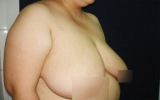 Hà Giang: Người phụ nữ có ngực nặng 2kg, dài 39cm