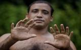 Người đàn ông có 24 ngón chân tay