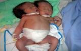 Bé sơ sinh hai đầu đã tử vong