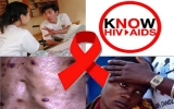 Thế giới chung tay phòng chống HIV/AIDS