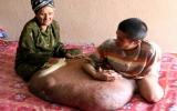 Người có khối u rộng hơn 1 m có thể mang bướu suốt đời