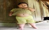 Lý giải nguyên nhân béo phì bé trai 2 tuổi khổng lồ