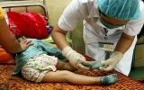 Hậu Giang: Ca bệnh tay chân miệng tăng đột biến