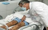 Bệnh viêm màng não mô cầu vào thời kỳ bùng phát