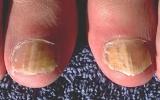 Các bệnh ngoài da dễ mắc