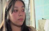 Thiếu nữ khóc ra máu