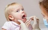 Cách phòng ngừa loét miệng cho trẻ