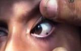 Kỳ lạ cô bé 12 tuổi khóc…ra đá