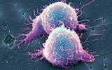 Tế bào ung thư tự tiêu hủy bởi nước cây sả tươi?