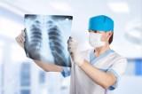 Cộng hòa Séc thử nghiệm thuốc mới điều trị ung thư phổi