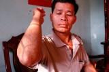 Vì sao Công an TX.Tân Uyên tạm đình chỉ điều tra vụ anh Lâm Văn Báo bị chém trọng thương?