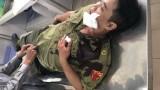 Bắt kẻ ngáo đá đâm lực lượng dân phòng bị thương